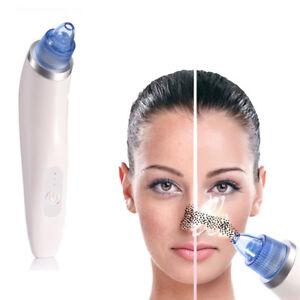 Diamond-Blackhead-Vacuum-Suction-Removal-Face-Clean-Skin-Care-Beauty-Machine
