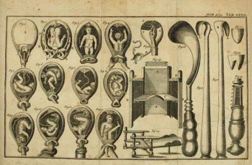 Picture Child Birth Framed Print 1800s Medical Equipment Obstetrical Forceps