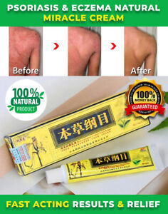 NEW-ORIGINAL-ADVANCED-PSORIASIS-amp-ECZEMA-NATURAL-CREAM-RELIEF