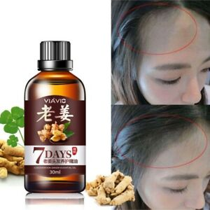 Ginger-Essential-Oil-Anti-Loss-Hair-Treatment-Nourish-for-Hair-Growth-Sessence