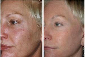 Anti Aging SkinCare Kit for Older Skin - Cleanser Serum Toner Moisturizer Peel