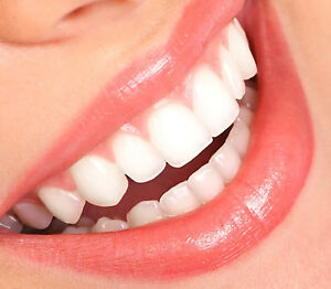 Missing tooth temporary replacement teeth fill gap filler diy twin image is loading missing tooth temporary replacement teeth fill gap filler solutioingenieria Images