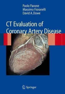 """""""CT Evaluation of Coronary Artery Disease by Pavone, Paolo ..."""