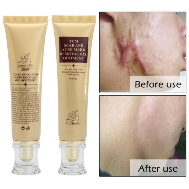 30g Lanbena Pro Anti Acne Scar Removal Cream Skin Face Cream Acne Spot Treatment For Sale Online