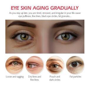 Serum-Protein-Augencreme-Falten-Entferner-Augenringe-gegen-Schwellung-Heiss