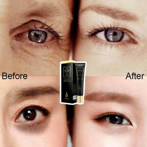 Hyaluronic Acid Eye Cream Anti Puffiness Remove Dark Circles Anti