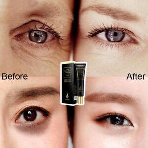 Hyaluronic Acid Eye Cream Anti Puffiness Remove Dark Circles Anti