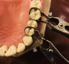 Dental Matrix Bands The U Dental Bands Mod Kit