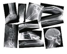 Roylco Broken Bones X-ray - Theme/subject: Radiology - Skill Learning: Anatomy -