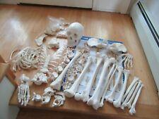15olife Size Human Skeleton Medical Modelmissing 1 Hand 1 Footgood Quality