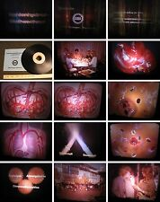 16mm Film GIDA Film-Brot Kohlenhydrat-Biochemie Stoffwechsel-Forschung um 1970