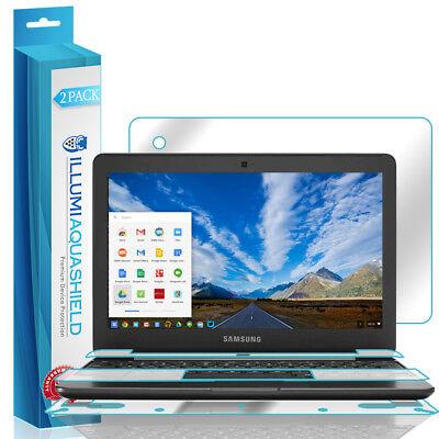Back Protector for Chromebook 3 11.6 XE500C13 2016 2x iLLumi AquaShield Front