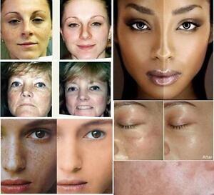 skin whitening hydroquinone