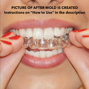 2-x-Teeth-Whitening-Mouth-Trays-Remouldable-Gum-Shields-Easy-amp-Fast-Moulds