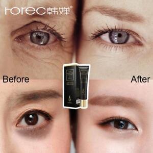 ROREC-Hyaluronic-Acid-Eye-Cream-Anti-Aging-Wrinkles-Dark-Circles-Puffiness