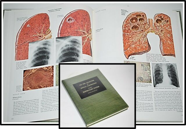 Ciba Collection Medical Illustrations Respiratory System Frank Netter ... New