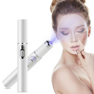 Miraclepen-Spots-Removal-Blue-Light-Therapy-Acne-Laser-Pen-Smartgear-Factory
