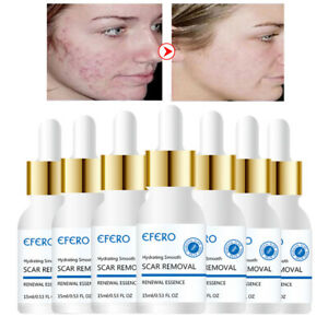 Details about Removal Acne Scar Marks Essence Treatment Dark Spot Face Care  Whitening Cream