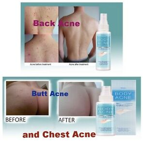 how to clear up chest and back acne