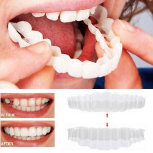 1Pair Perfect Smile Teeth Cosmetic Veneers Snap On Comfort Covers Upper + Bottom 8431220229810