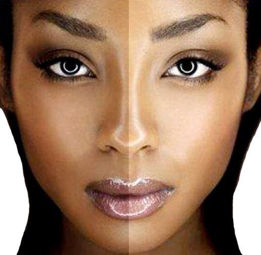 SAFE! PRO SKIN WHITENING CREAM also treats acne & scars