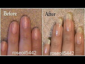 Nail growth strong nails hardener restore nails amazing result image is loading nail growth amp strong nails hardener restore nails solutioingenieria Gallery