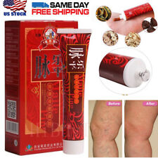 Chinese Herbal Varicose Veins Treatment Cream Ointment Leg Phlebitis Removal 30g