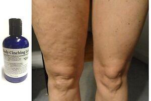 ModelSupplies-Body-Cinching-Lotion-DMAE-ALA-Ester-C-HA-Cinch-Skin-Tightening-4oz