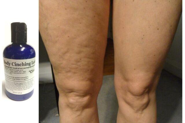 ModelSupplies Body Cinching Lotion 4oz DMAE ALA Ester-C HA Cinch Skin Tightening