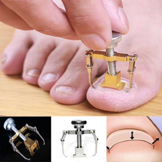 One Toe Finger Ingrown Toenail Fixer Keep Nails Healthy