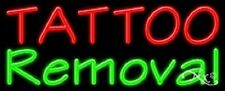 Brand New Tattoo Removal 32x13 Real Neon Sign Withcustom Options 11485