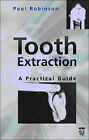 Tooth Extraction: A Practical Guide by Paul D. Robinson (Paperback, 2000)