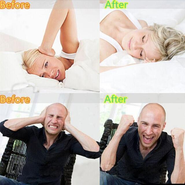 Dental Mouth Guard Bruxism Splint Night Teeth Tooth Grinding Sleep Aid Tools MH