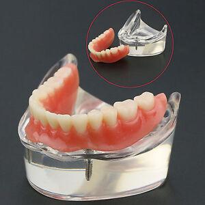 Dental-Tooth-Model-Inferior-2-Implants-Lower-teeth-6002