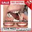 Set-Upper-amp-Lower-Magic-Teeth-Brace-Temporary-Smile-Comfort-Fit-Cosmetic-Denture thumbnail 1