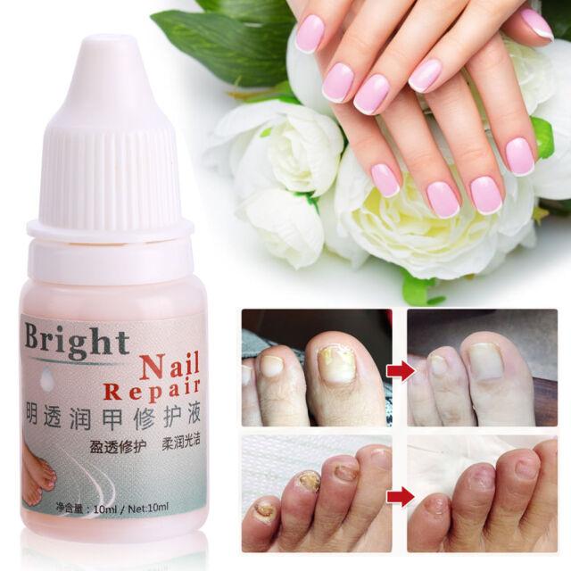 Anti Fungal MAXIMUM Strength Nail Treatment Toenail Fungus Athletes ...