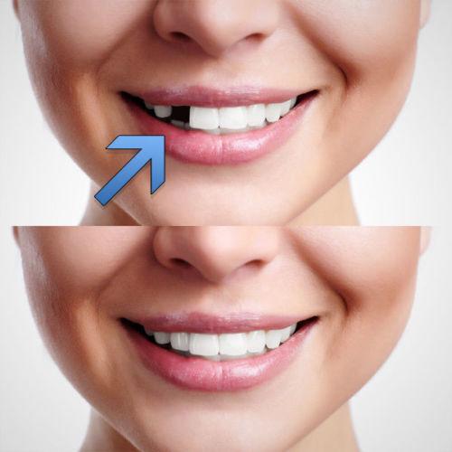 Tooth temporary repair kit fix broken teeth and fills gaps