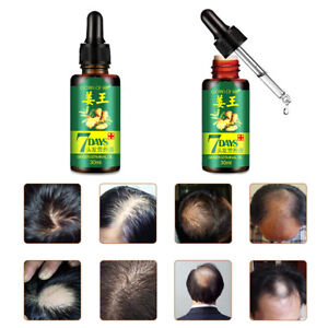 7-Days-Hair-Growth-Ginger-Essential-Oil-Nourishing-For-Damaged-Hairs-Striking