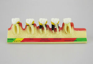 Dental-Periodontal-Disease-assort-Tooth-Teeth-Typodont-Study-Teaching-Model