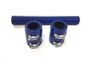 12-034-Universal-Blue-Radiator-Hose-Kit-with-Blue-Aluminum-Blue-End-Caps-Hot-Rod