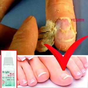 2Pcs Anti Fungal Treatment Extra Strength Toenail Fungus Foot Fungi ...