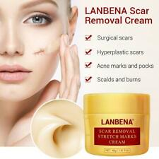 Lanbena Stretch Mark Removal Cream Pregnancy Scar Repair Face Acne Treatment 40g For Sale Online Ebay