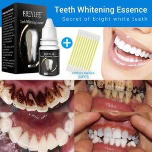 10ml-LANBENA-Zahnaufhellung-Essence-Liquid-Mundhygiene-Reinigung-Serum-entfernen