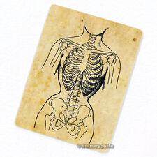 Deformed by Corset Deco Magnet, Decorative Fridge Antique Medical Illustration