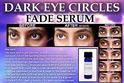 3 Before And After Dark Eye Circle Under Eye Circles Best Natural
