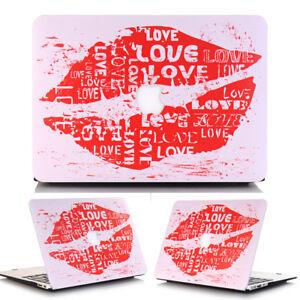 Love-Kiss-Sweet-Heart-Anti-Scratch-Matte-Hard-Case-Shell-for-MacBook-Air-13-3-034