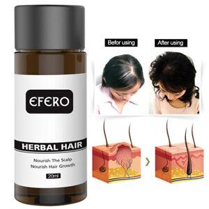 Aceite-Esencial-suero-de-crecimiento-del-pelo-Perdida-de-Cabello-rebrote-de-tratamiento-para-hombre