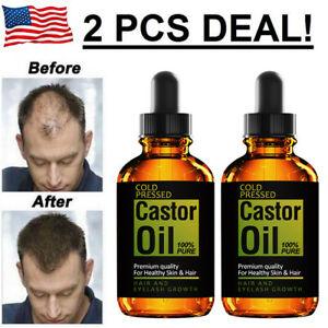 2-PCS-Pure-Castor-Oil-for-Eyelashes-Eyebrows-Hair-Growth-Skin-and-Face-1-oz
