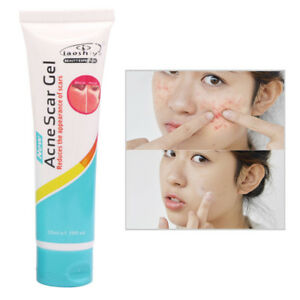 New-Anti-Acne-Cream-Oil-Control-Shrink-Pore-Acnes-Spot-Remove-Face-Care-KM90
