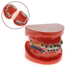 Dental Orthodontic treatment study model with Ortho bracket and Arch wire 3005